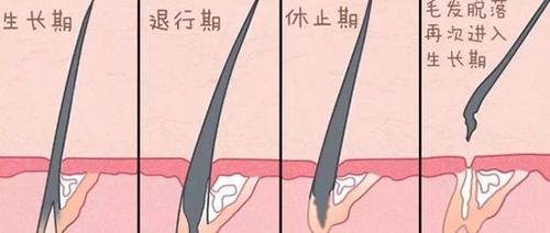 植发,脱落期,